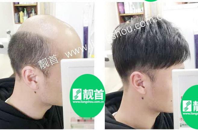真发做的假发,脱发男提升形象的利器法宝!