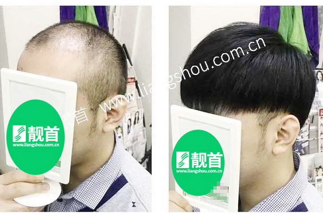 """网友自述:""""补发假发""""使我发量增加变发型"""