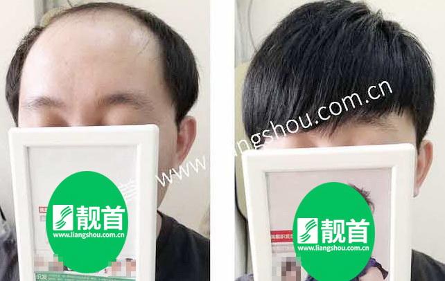 """顾客自述:""""无痕织发""""令我发量增加可以做新的发型"""