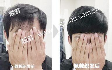 真头发的假发,IT码农提升形象的好方法!