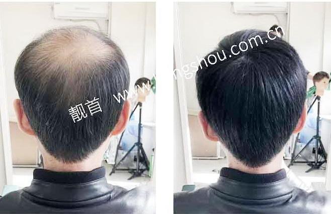 """""""真人头发假发""""让老爸有活力、更有自信!"""