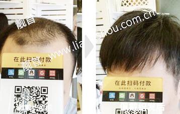 """发友点赞:""""增发织发""""让我发量增加可以做新的发型"""