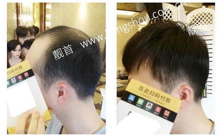 真头发假发套可以说是脱发男告别脱发烦恼的法宝!