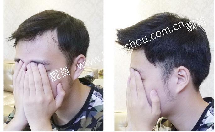 """发友自述:""""假发真人发""""让我发量增加变发型"""