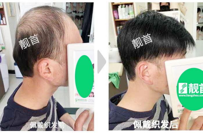 """19顾客自述:""""发片假发""""令我发量增加变发型"""
