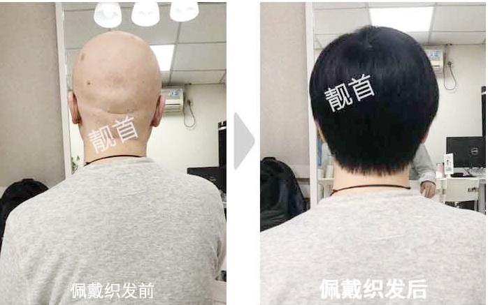 """发友点赞:""""真人假发套""""让我发量增加可以做新的发型"""