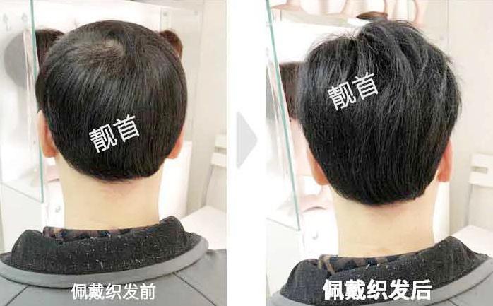 """发友点赞:""""补发和织发""""让我发量增加变发型"""