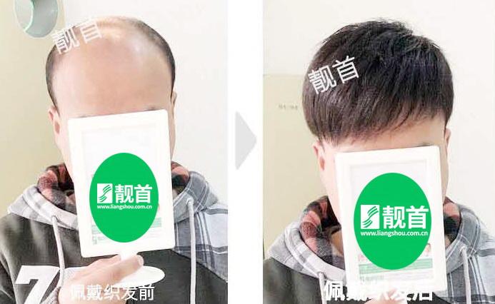 真头发假发,程序员告别脱发烦恼的秘籍!