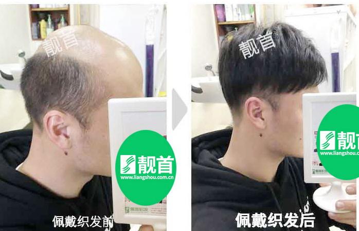 """发友自述:""""假发补发""""让我有了新的发型"""