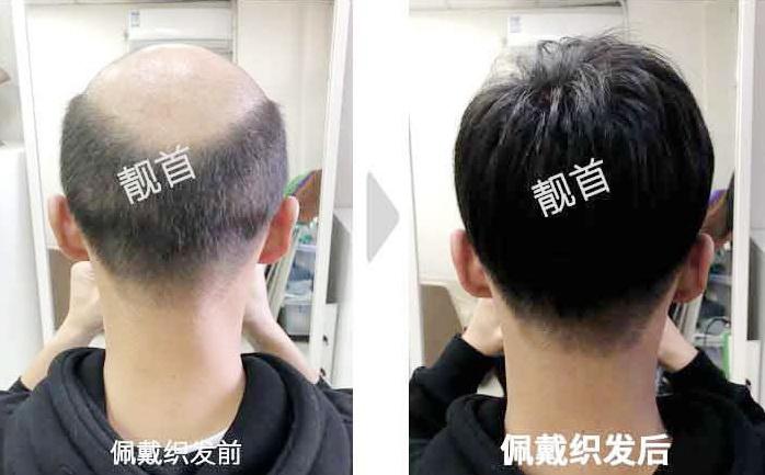 """发友点赞:""""隐形假发""""让我有了新的发型"""