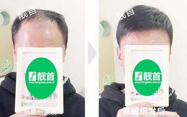 """顾客自述:""""真人发丝假发套""""令我发量增加可以做新的发型"""