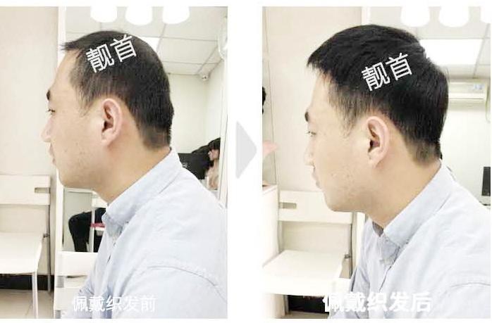 """顾客点赞:""""织发""""令我焕然一新"""