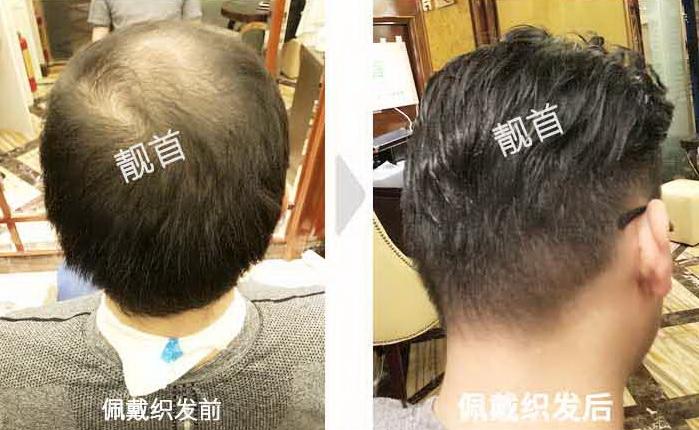 """5顾客自述:""""真人发丝假发套""""令我发量增加可以做新的发型"""