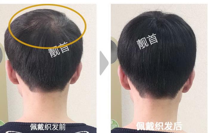 人发假发,脱发男形象提升的利器!