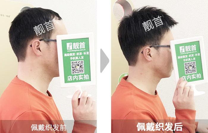 短发-男士-青年-织发补发案例