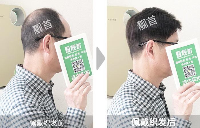 中年-自由式-发块-男士-补发效果案例