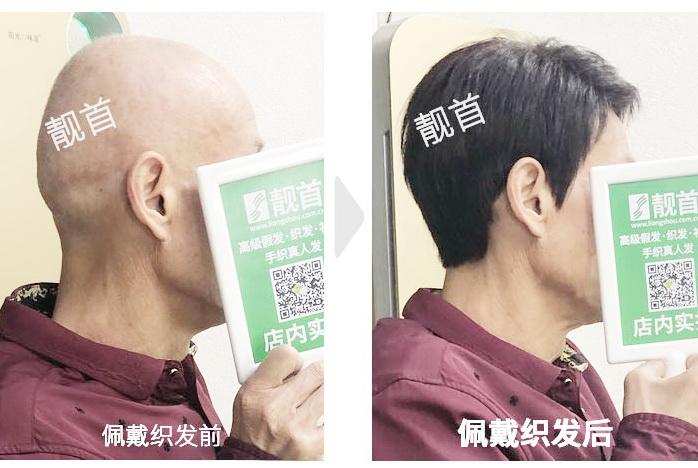 """""""真头发的假发""""让老爸有活力、更有自信!"""