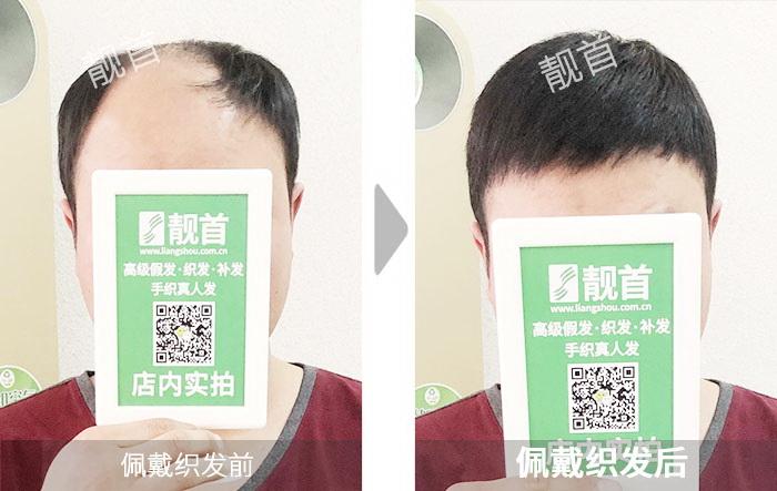 青年-短发-男士-织发补发效果案