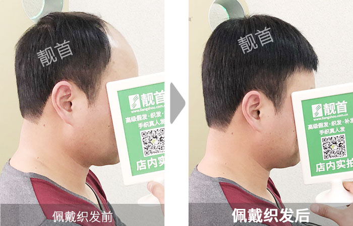 青年-短发-男士-织发补发效果案例