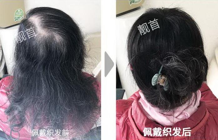 女士-头顶白发-盖白发-补发织发效果案例