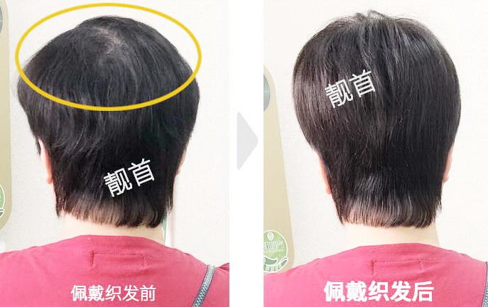 用补发片,让头发变浓密提升气质!