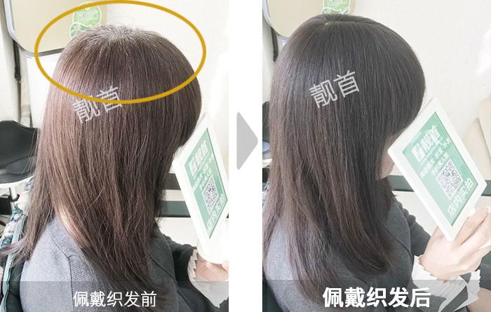 青年-女士-头顶白发-补发效果案例