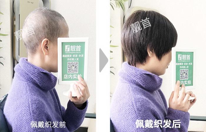 女士-波波头-盖白发-全头补发效果案例