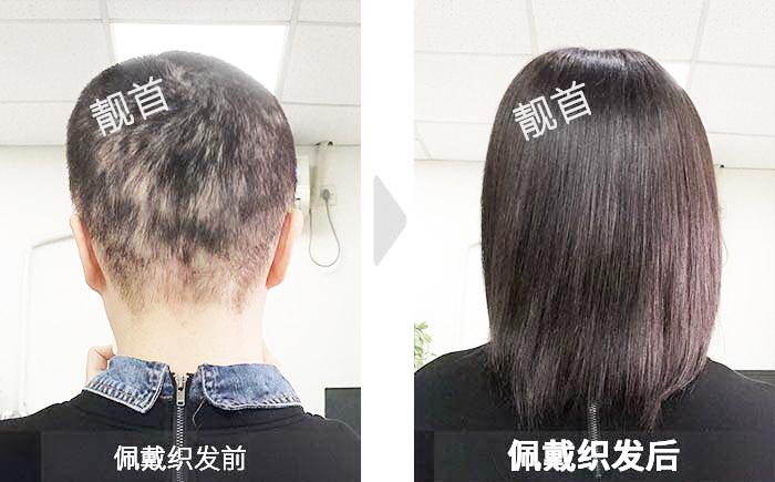 女士-整体白发-盖白发-织发在哪里可以免费领取qq红包效果案例