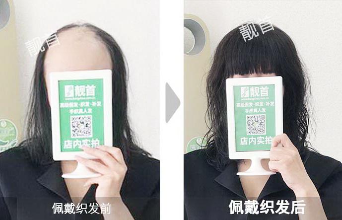 女士-微烫-长发-秃顶-假发补发效