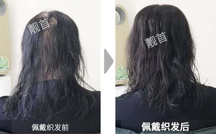 女士-微烫-长发-秃顶-假发补发效果案例