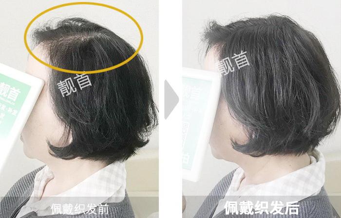 女士-头顶稀少-中年-补发效果案