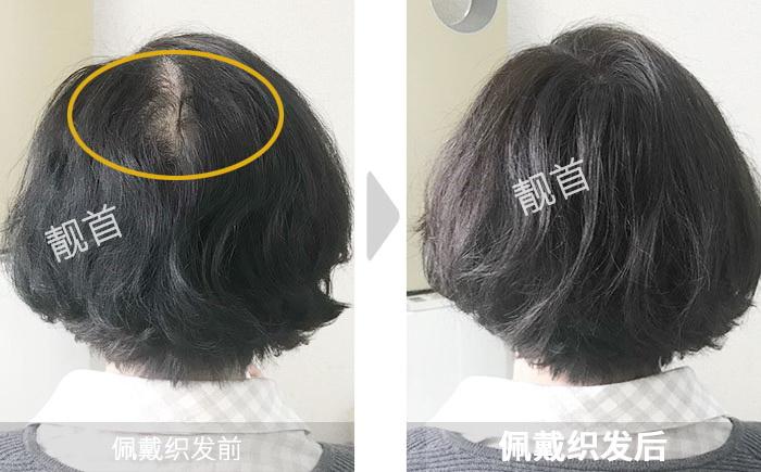 女士-头顶稀少-中年-补发效果案例