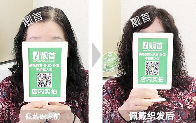 女士-烫发-盖白头顶白发-织发补发效果