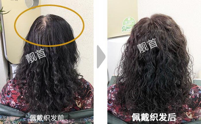 女士-烫发-盖白头顶白发-织发在哪里可以免费领取qq红包效果