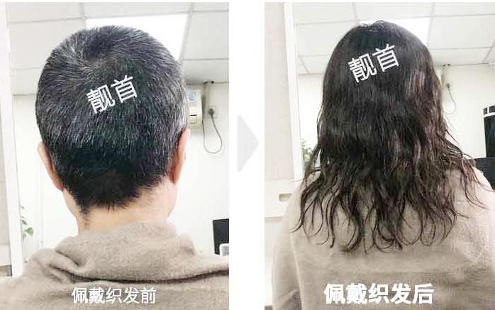 """摆脱染发剂,用""""织发织发补发""""盖住头顶白发"""