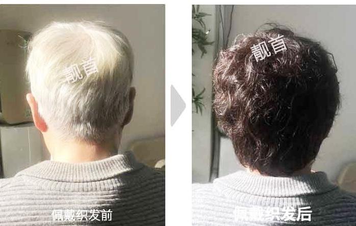 """告别染发,用""""真发做的假发""""完美盖住白头发!"""