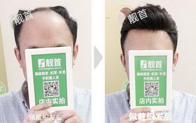 增发防脱发?