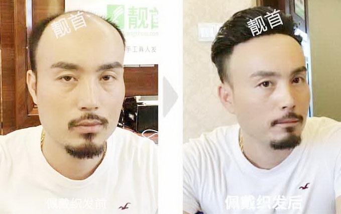 """什么是""""男假发""""?好不好?效果怎么样?"""