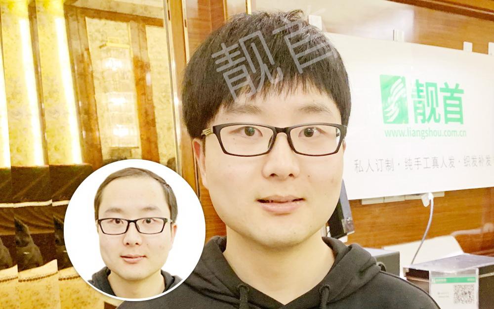 植发一般要多久?