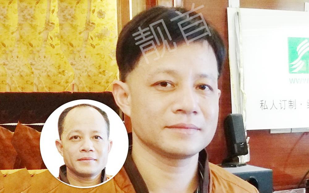 植发之后真的会有明显的效果吗?