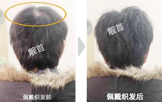 女士-中年-盖白发-头顶稀少-织发