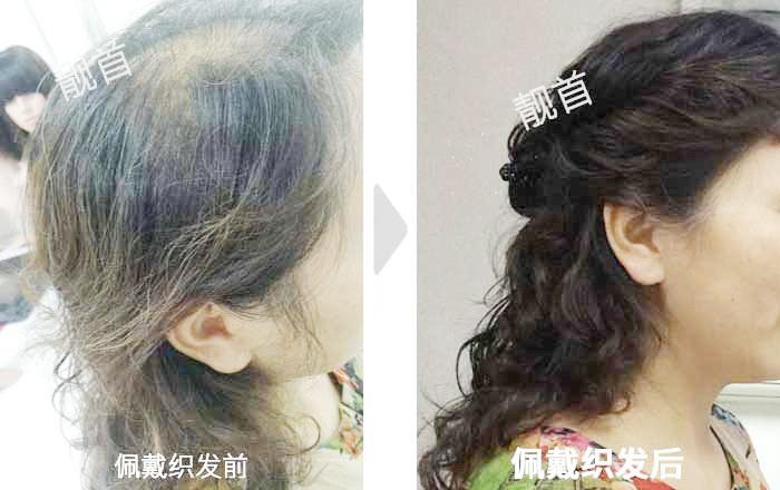 女士-中年-盖白发-头顶少-补发案