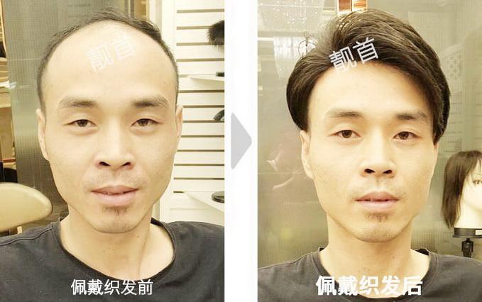 男士-大面积-露出发际线-织发补发