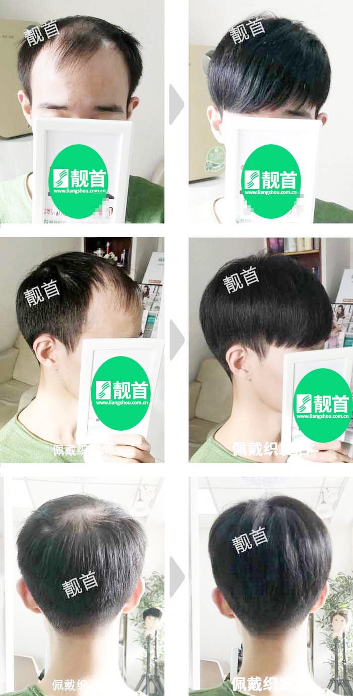 男士-青年-发块-顺发-织发补发案例