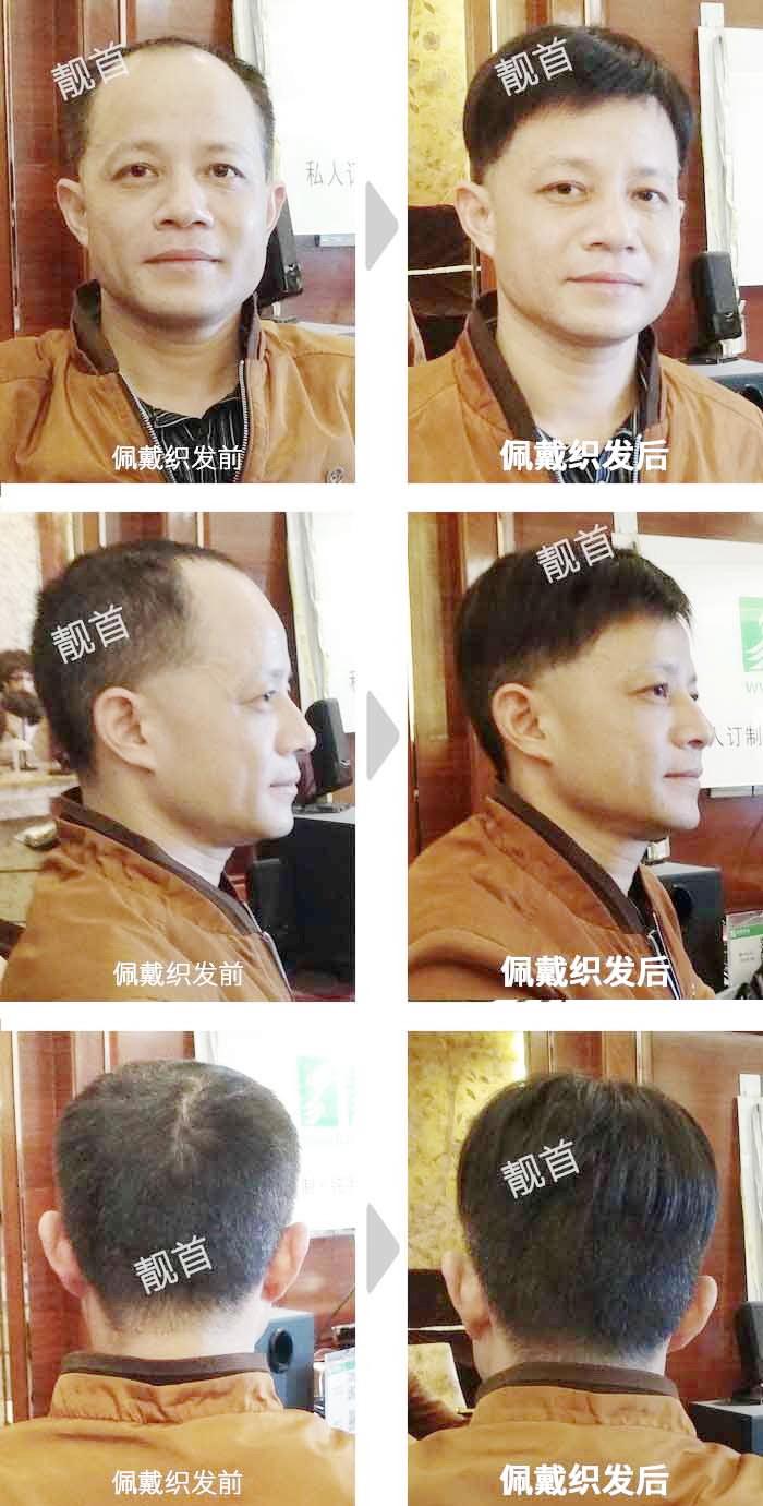 男士-中年-短发-织发补发案例