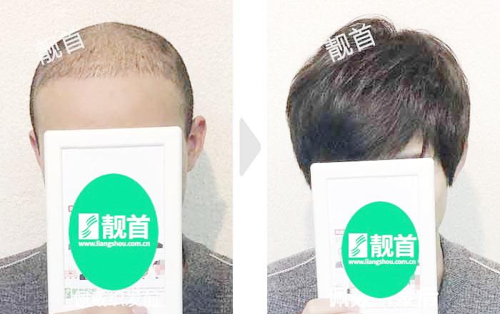 男士-青年-光头-顺发-织发补发案例