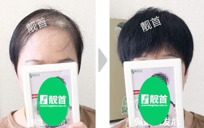 女士-老年-盖白发-织发补发案例