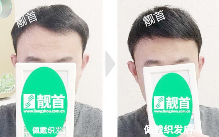 短发-头顶稀少-中年-男士真人发