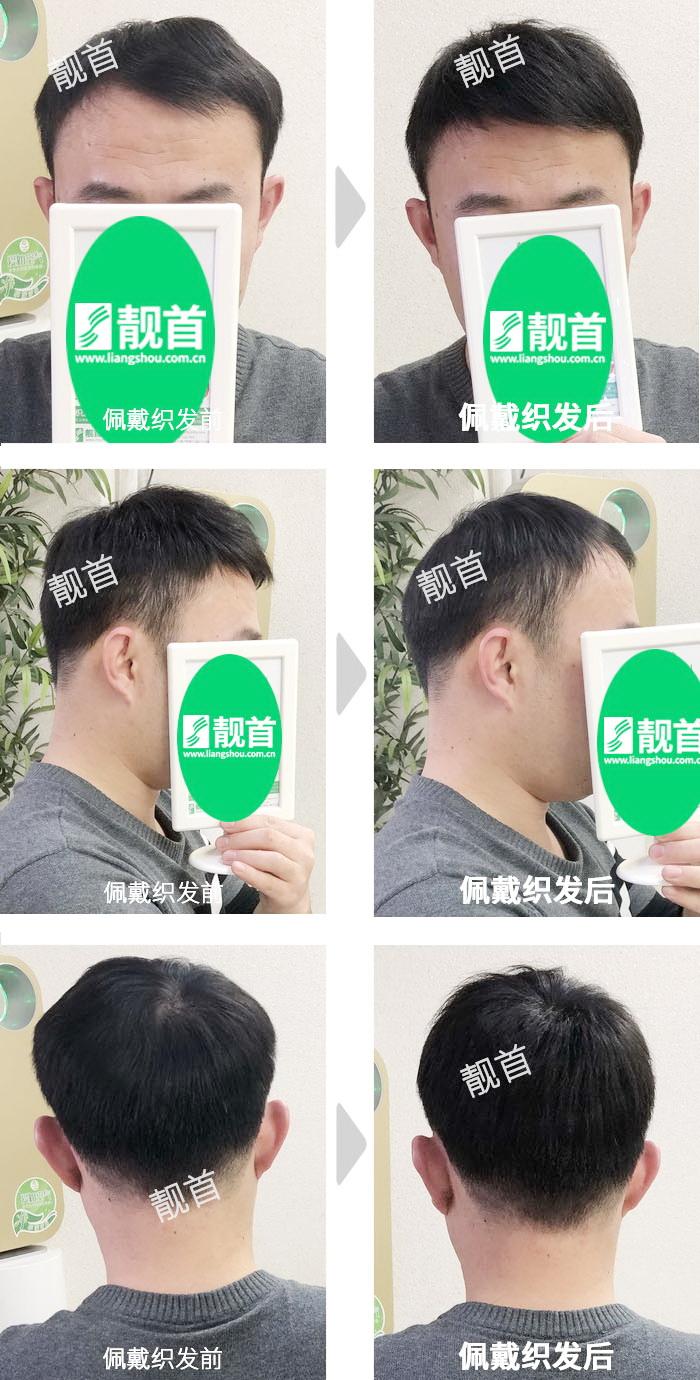 短发-头顶稀少-中年-男士真人发假发-补发织发实拍案例