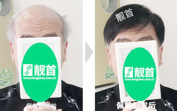 老年-盖白发-假发头顶补发块